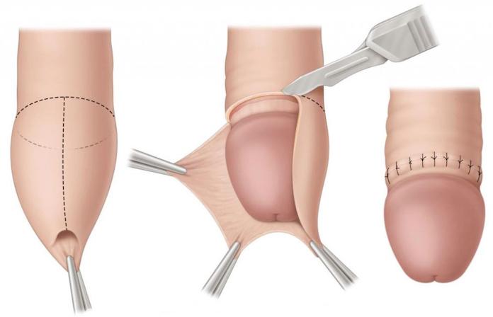 обрезание операция харьков