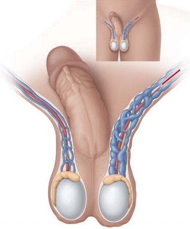 операция варикоцеле харьков