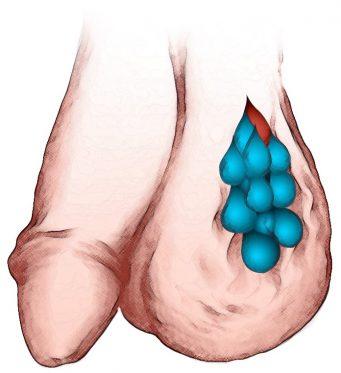 варикоцеле лечение харьков