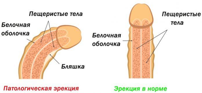 болезнь пейорони операция