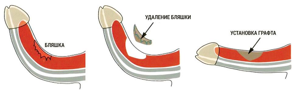 корпоропластика лечение пейрони операция