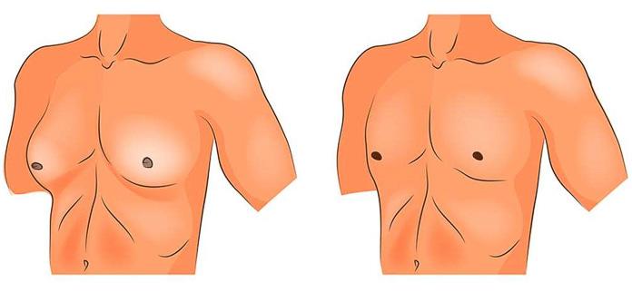 гинекомастия клиника