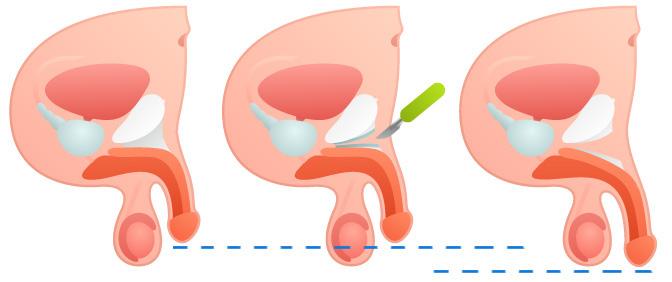 лигаментотомия операция удлинение полового члена