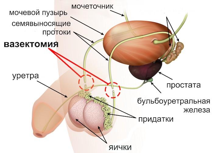 вазектомия
